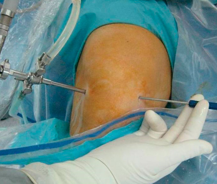 Examen de artroscopia de rodilla
