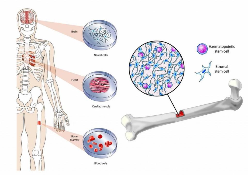 Tratamiento con células madre 2