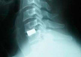 Cirugía de columna