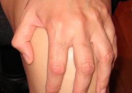 Dolor anterior de rodilla