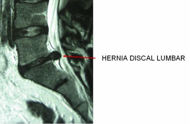Los ejercicios para la columna vertebral corregir la curvatura de la columna vertebral