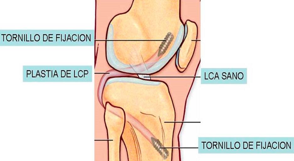 Artroscopia de rodilla examen de